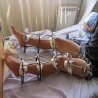 a6b42efdfb2f4 Método de Cirurgia Quebra as Pernas de Pacientes Para que Fiquem Mais Altas